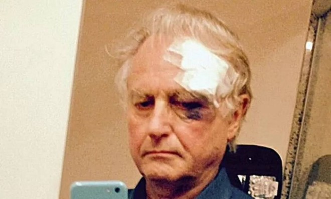 richard_dawkins_wounded_brazil